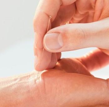 针灸减肥的使用禁忌有哪些