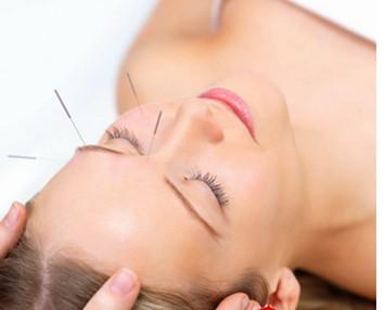 针灸美容需遵守三个原则